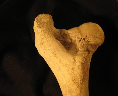 bone-1913914_1920